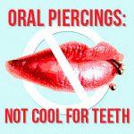 Oral Piercings: Not Cool for Teeth